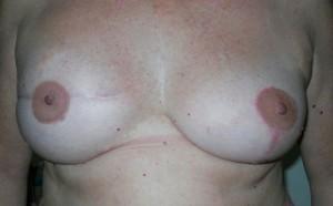 micropigmentación pezones